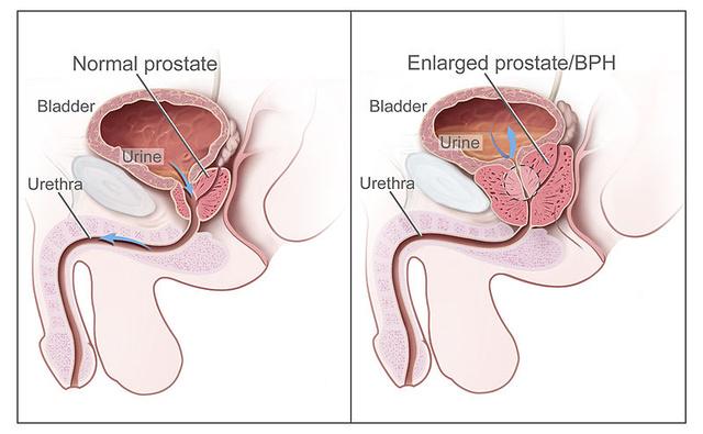 hogyan befolyásolja a prosztata masszázs az erekciót