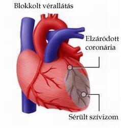 Szívbetegek szexuális élete - Mekkora a kockázat?