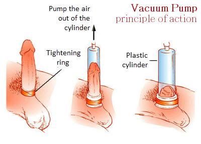 a pénisz lágyul a közösülés során hogyan készítsük el a pénisz vastagságát