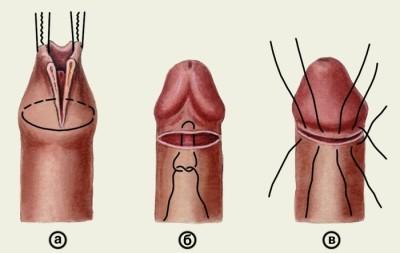 segíti az erekció meghosszabbítását az erekció meghosszabbításának módjai