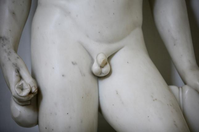 pénisz a hóna alatt