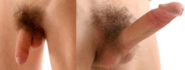 erekció során a pénisz feje