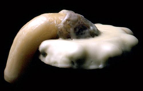 a pénisz magömlő gyűrűjén