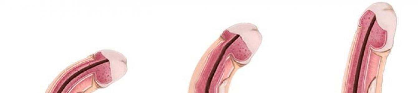 a pénisz vastagsága az erekció során Aggódom a gyakori merevedések miatt