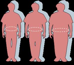 elhízás és merevedés