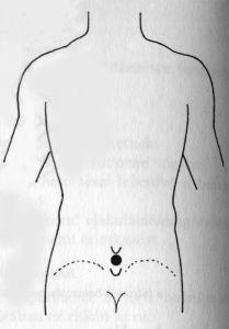 Akupunktúra pénisznövelő