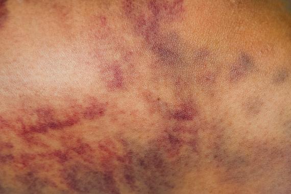 melanoma a péniszen Reggel felébredek, és merevedésem van