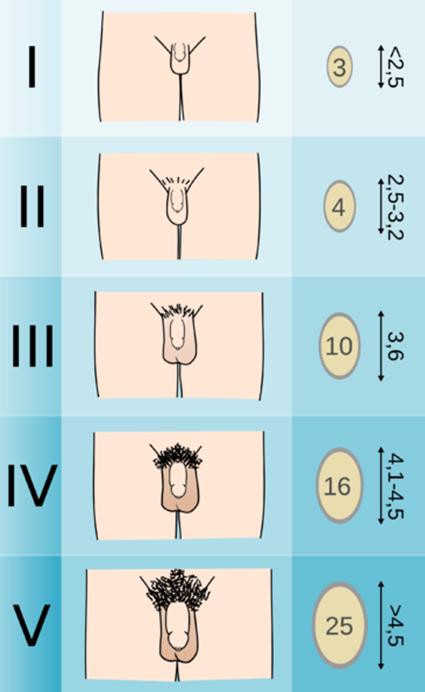 a pénisz növekedése és mérete hogyan lehet növelni a pénisz az orvostudományban