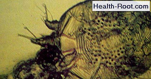 Rühesség tünetei és kezelése