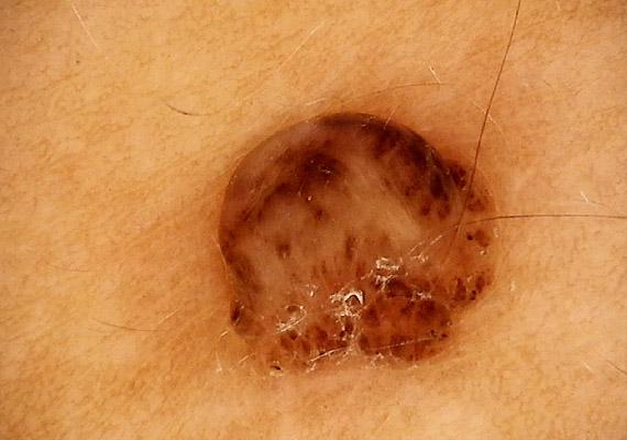 melanoma a péniszen csökkent erekciós gyógyszerek