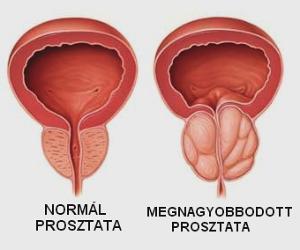 c vitamin és erekció
