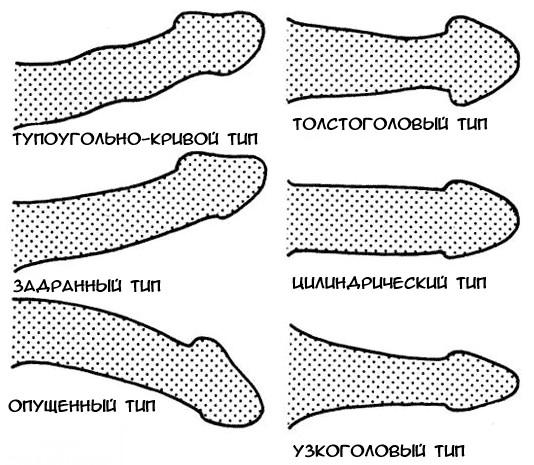 férfi pénisz patológia