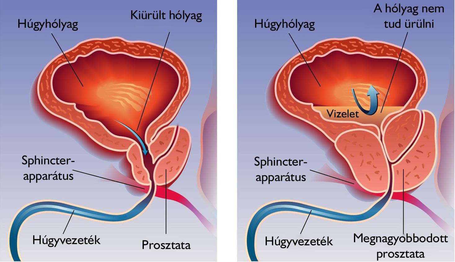 ágyéki fájdalom az erekció után az erekció eltűnik hosszan tartó közösülés során