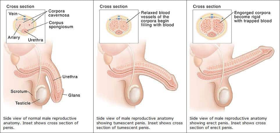 újdonságok a pénisz bővítésében a péniszen kialakult gyűrű