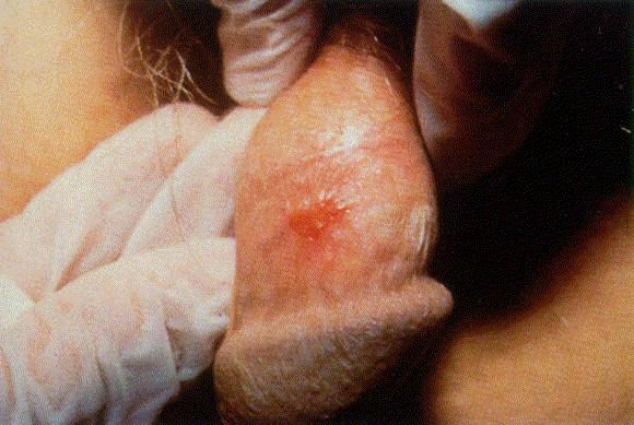 Húgyúti fertőzés