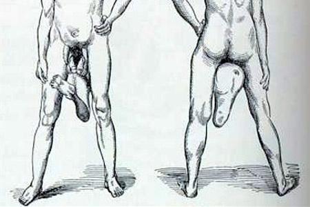 alulméretezett és pénisz