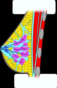 Duzzadt vénák a péniszen - okok, tünetek és kezelés a varikózis