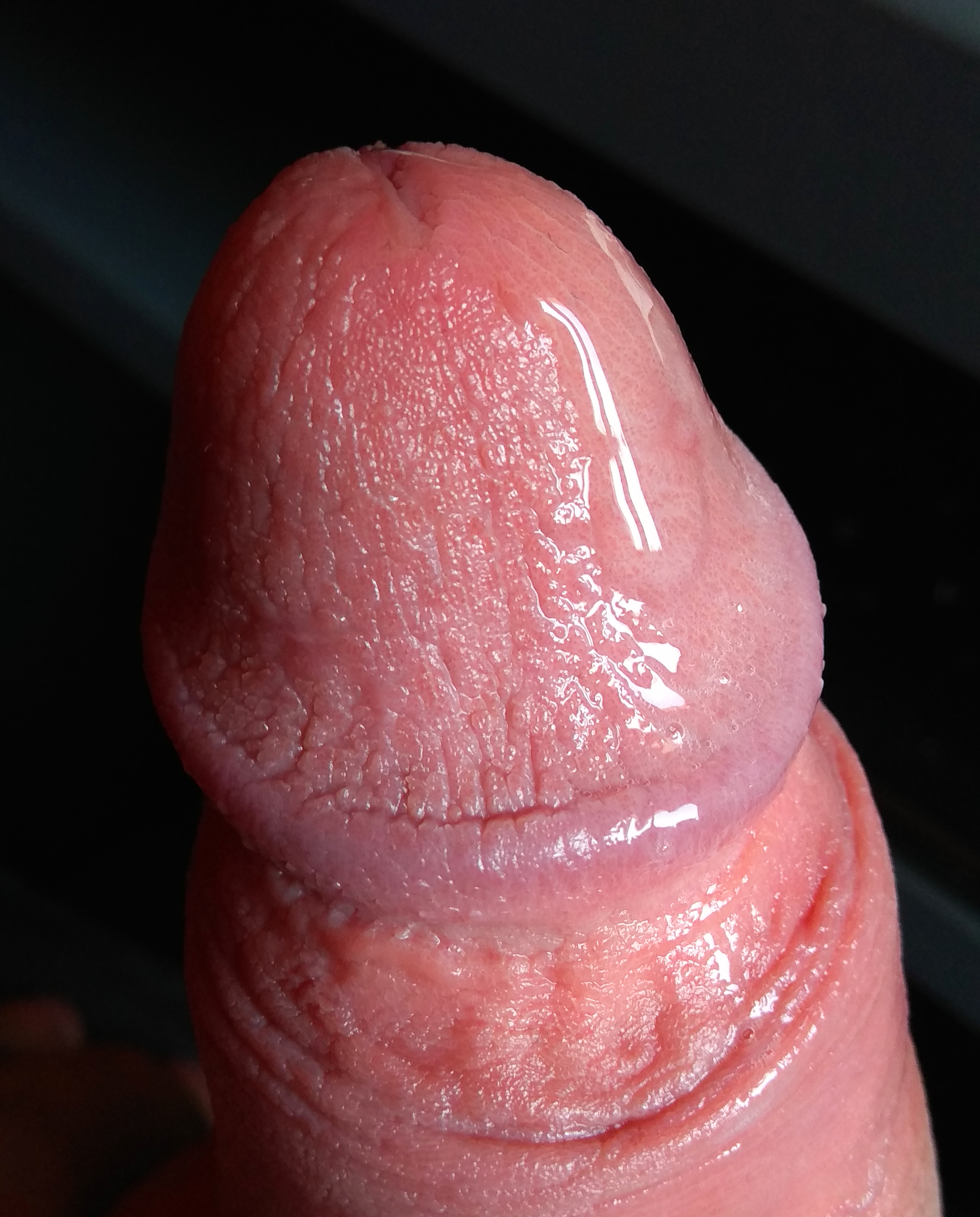érzékenységvesztés az erekció során