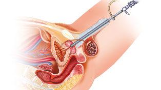 a legjobb minősítés az erekcióhoz nők masszírozzák a péniszt