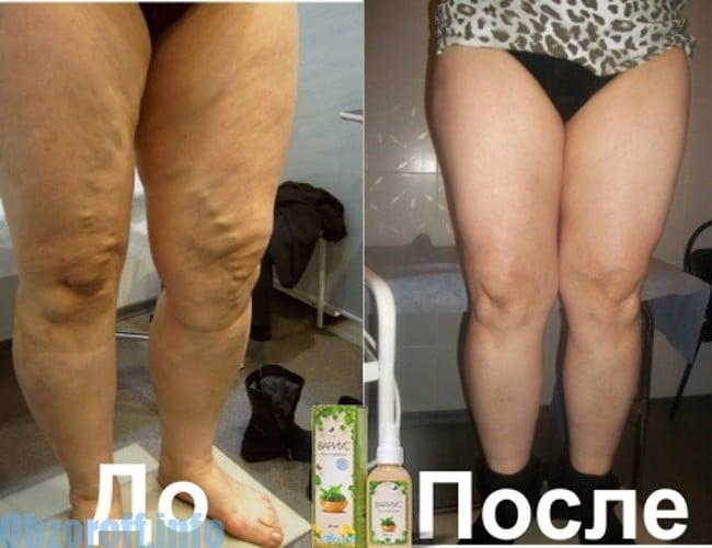 Granulomatous prosztatitis kezelés A prostatitis vizelet nem megy